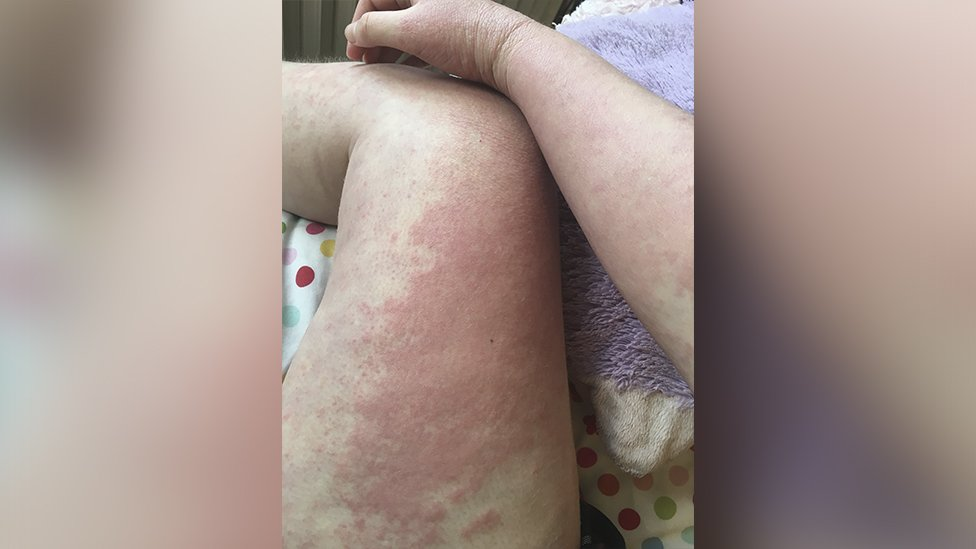 Pierna de Anna con eczema