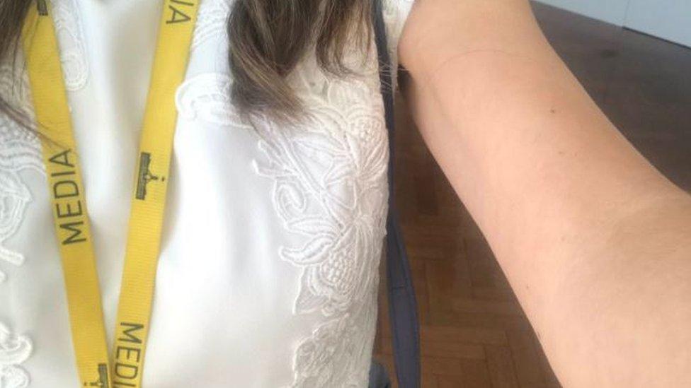 Penampilan Patricia Karvelas yang lengannya terbuka menjadi pembicaraan di media sosial.