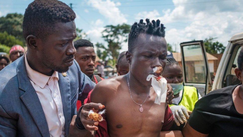 Угандийский музыкант, ставший политиком Роберт Кьягулани, также известный как Боби Вайн (слева), помогает своему продюсеру Дэну Мэджик (справа) попасть в больницу в Кайунге, Уганда, 1 декабря 2020 года.
