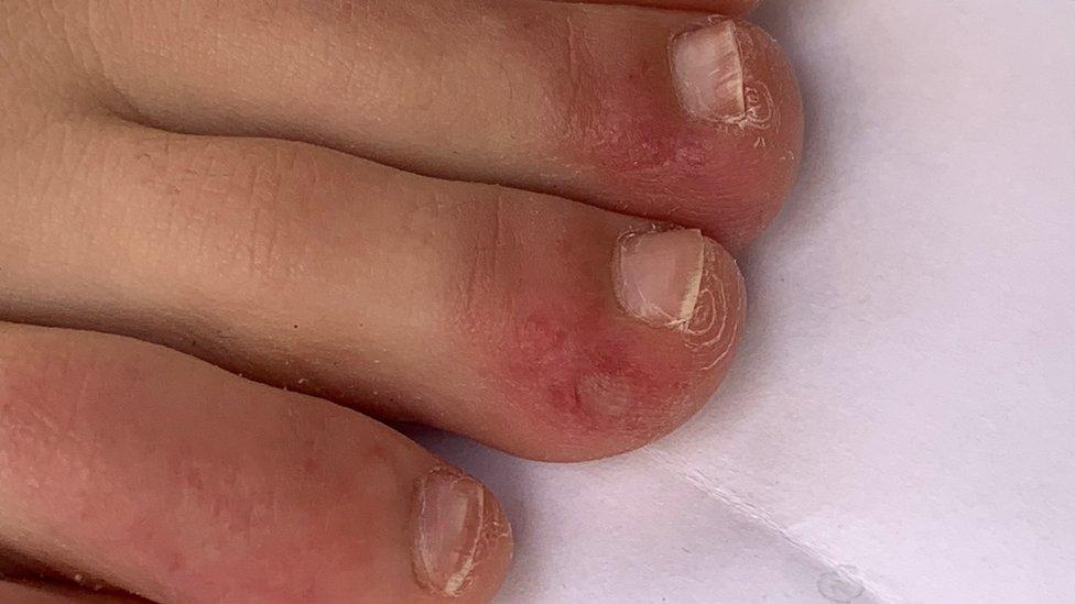 coronavirus covid toe and other rashes puzzle doctors bbc news