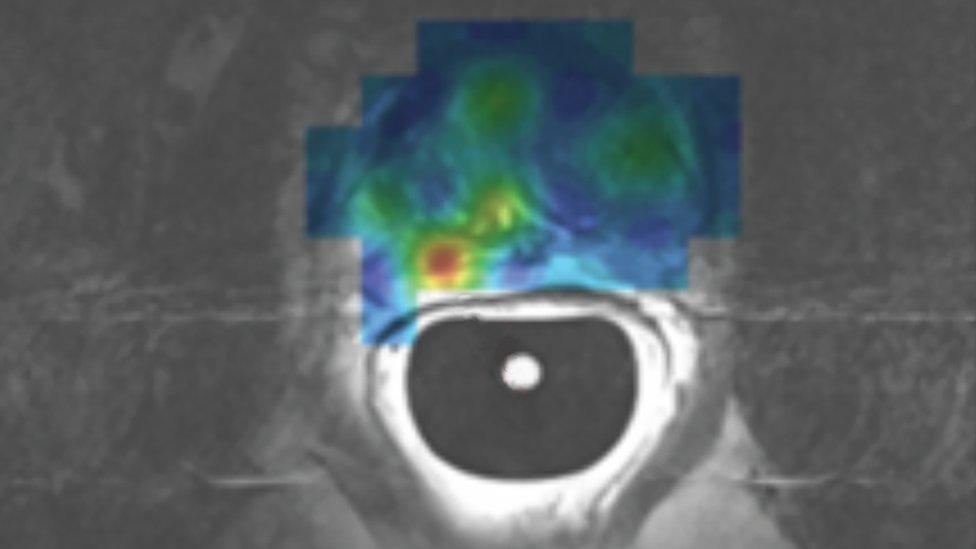 Escaneo del primer paciente en Europa en recibir una imagen por resonancia magnética (IRM) híper polarizada para cáncer de próstata