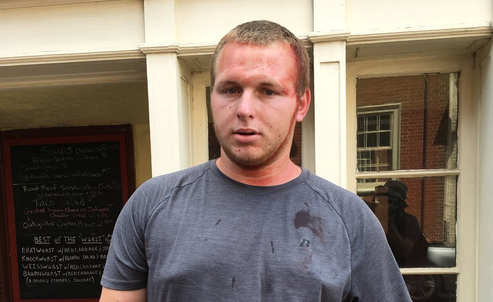 Daryl Vaughan, 24, was surrounded and beaten by counter-protesters