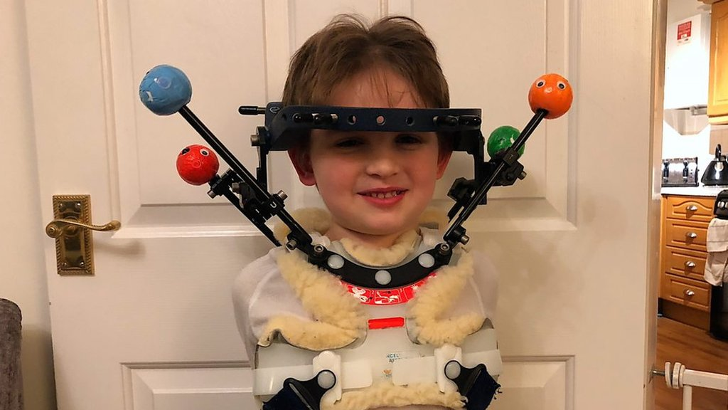 Halo brace boy from Long Stratton puts on brave face