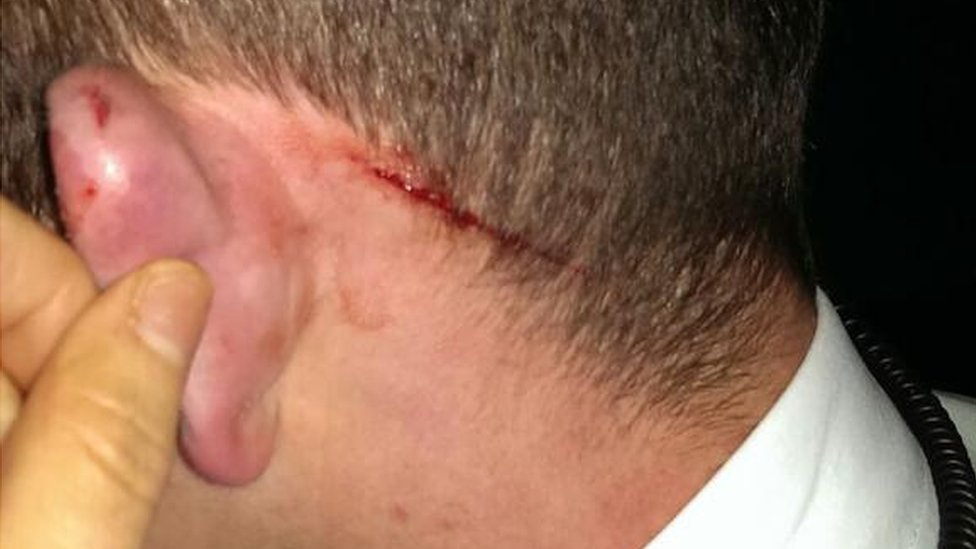 One PSNI officer sustained cuts to his head in an assault