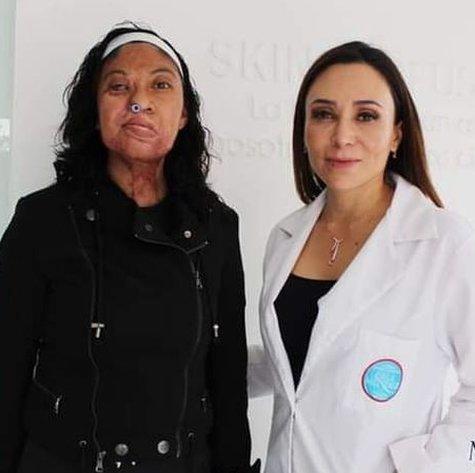 Esmeralda Millán con Isela Mendez, la cirujana que la ayudó con sus operaciones.