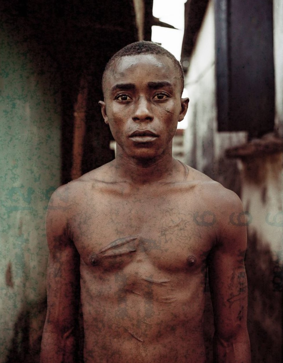 A young man, covered in scars, stares into the camera