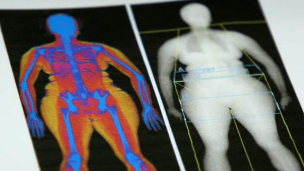 Escáner de grasa corporal que muestra la cantidad y y la distribución de grasa en el cuerpo.