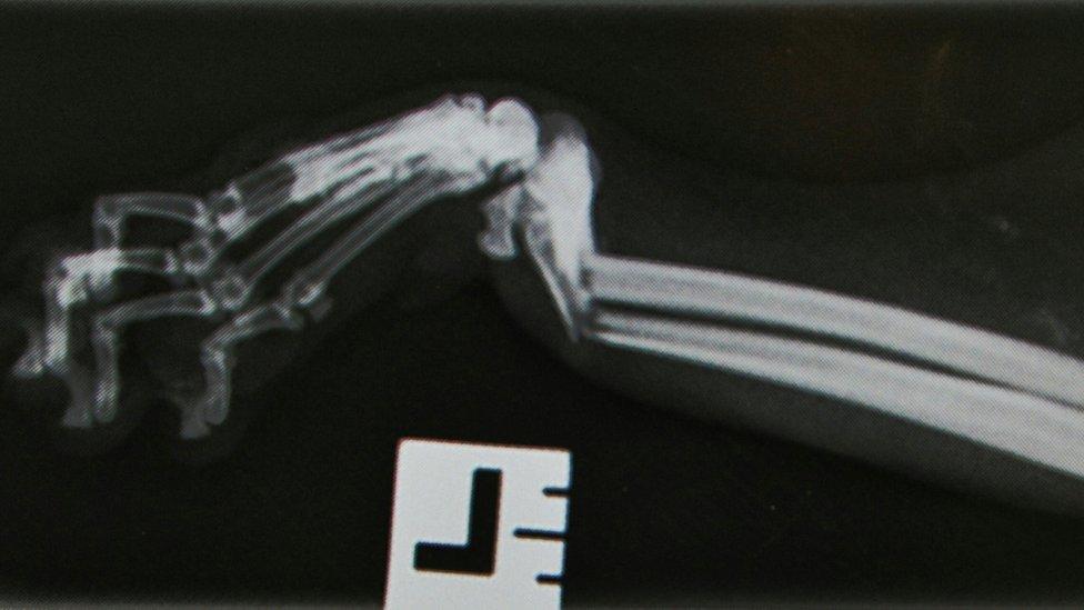 Shinji Hancock's x-ray