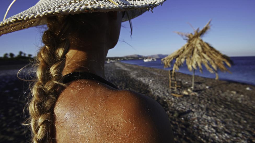 sunčanje koža