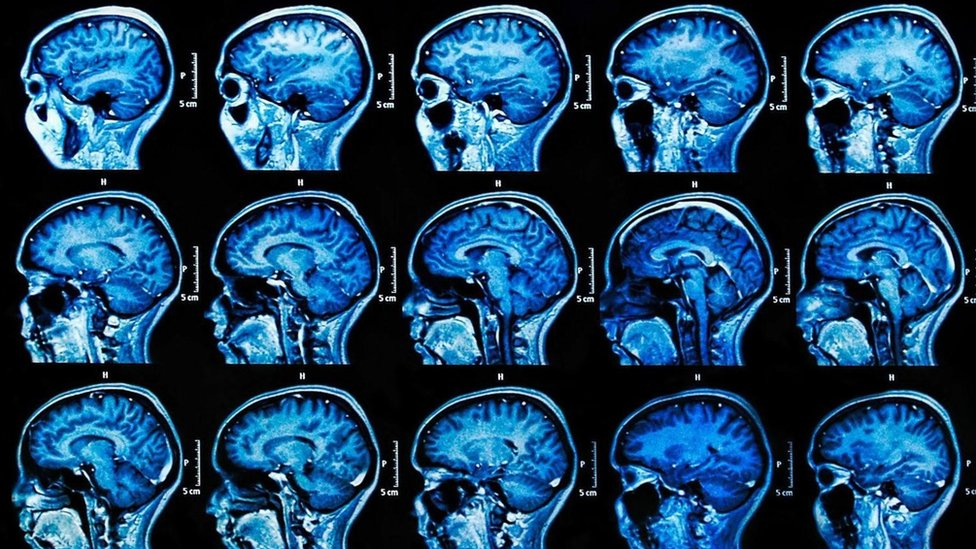 Imágenes de escáner cerebral