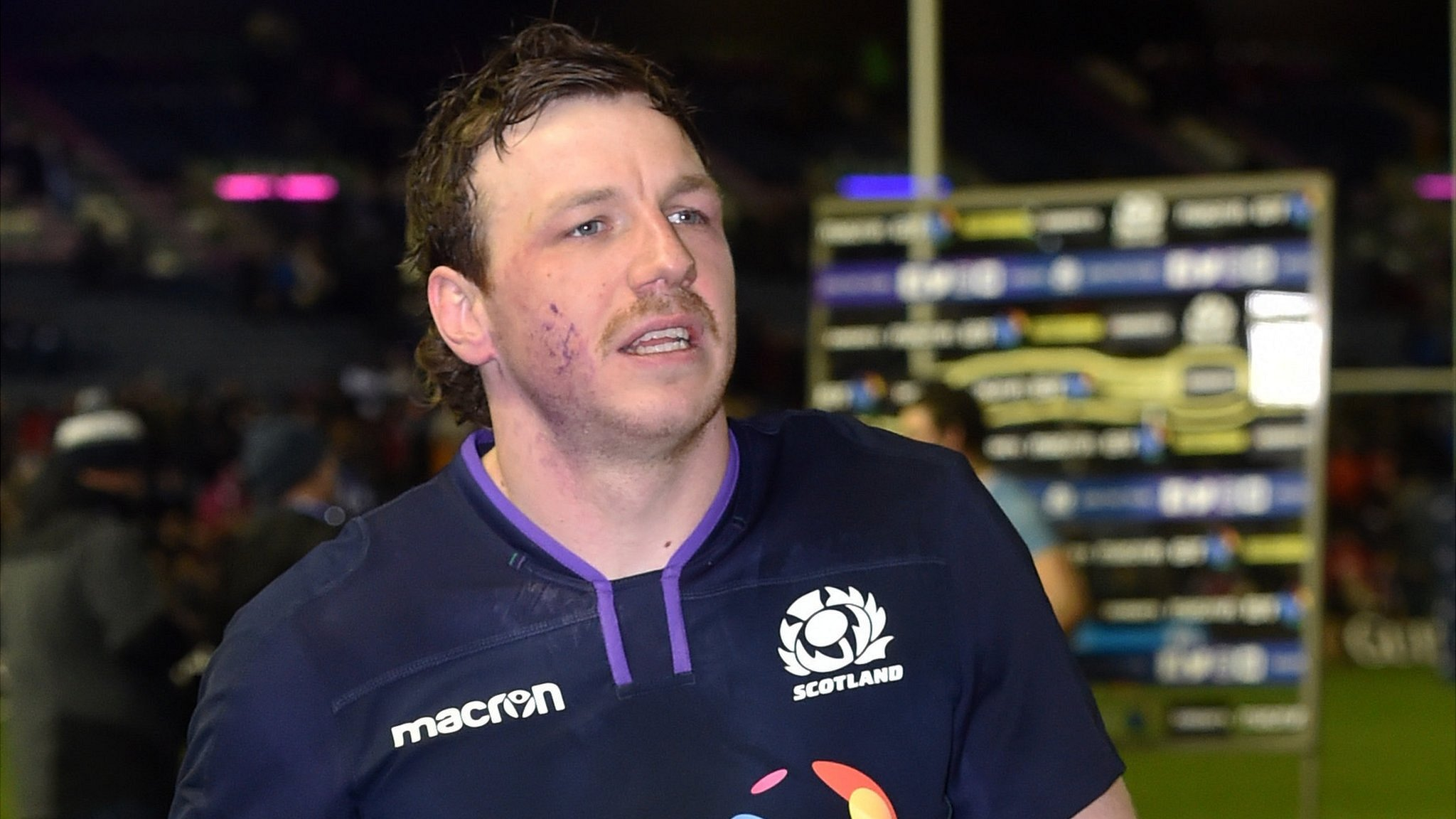 Hamish Watson: Edinburgh & Scotland flanker to miss Six Nations games with broken hand