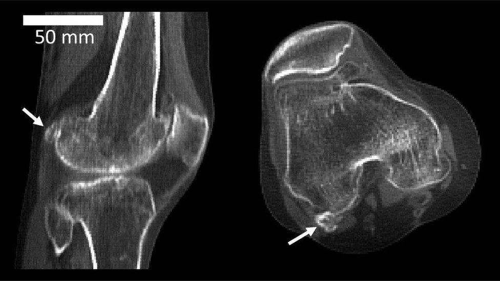 radiografía donde se puede ver la ubicación del hueso fabela.