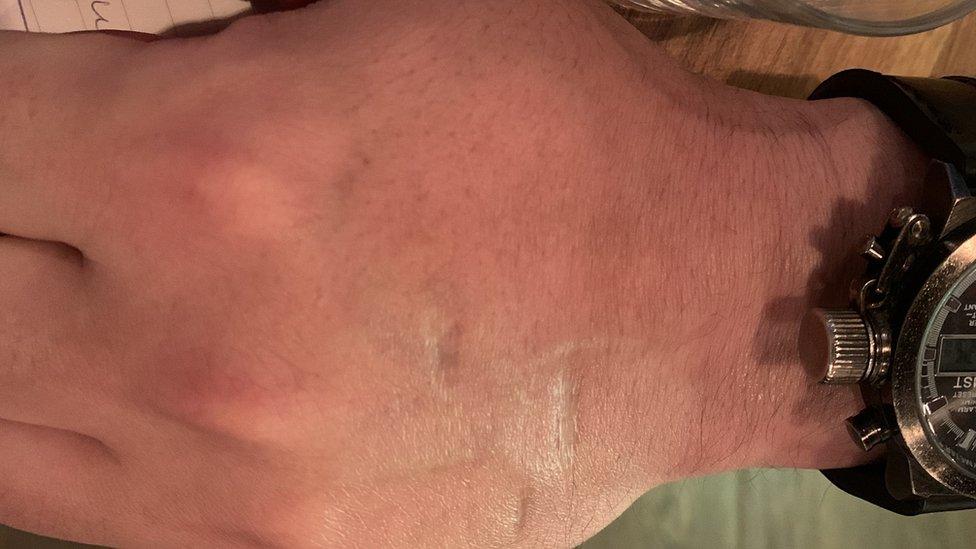 Ožiljak na ruci