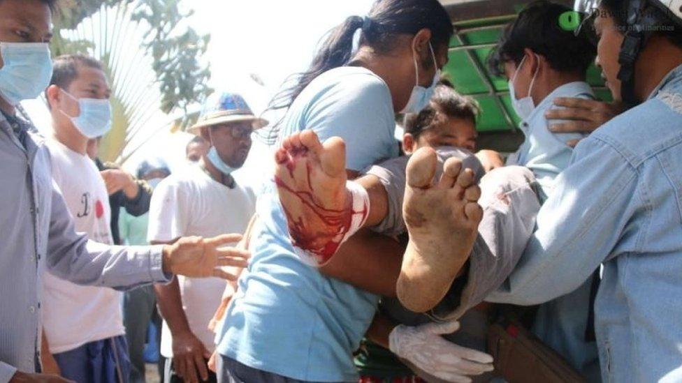 Petugas medis membawa pergi pengunjuk rasa yang terluka di Dawei.