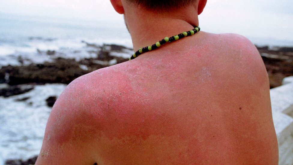 A man suffering from sunburn in Brazil.