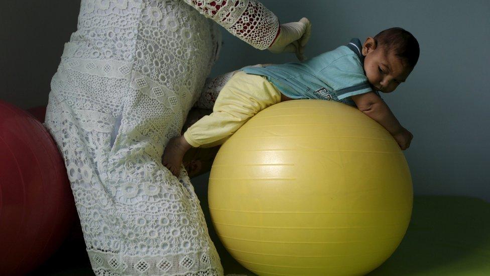 Bebê com microcefalia faz fisioterapia em Campina Grande (PB)