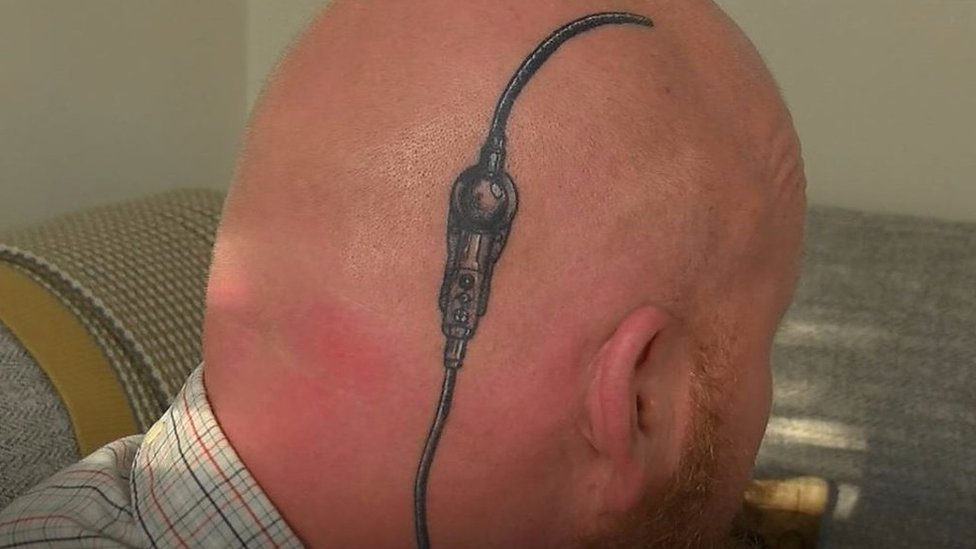 Dad gets tattoo of brain shunt after daughter's surgery