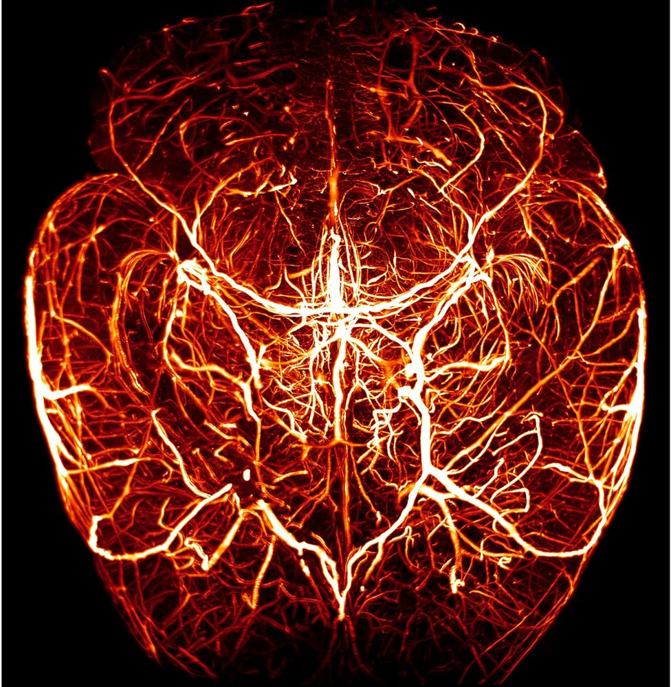 The network of blood vessels in the brain of a mouse
