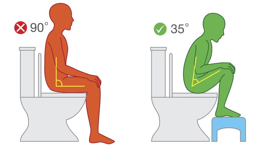 Ilustración de la postura correcta para defecar