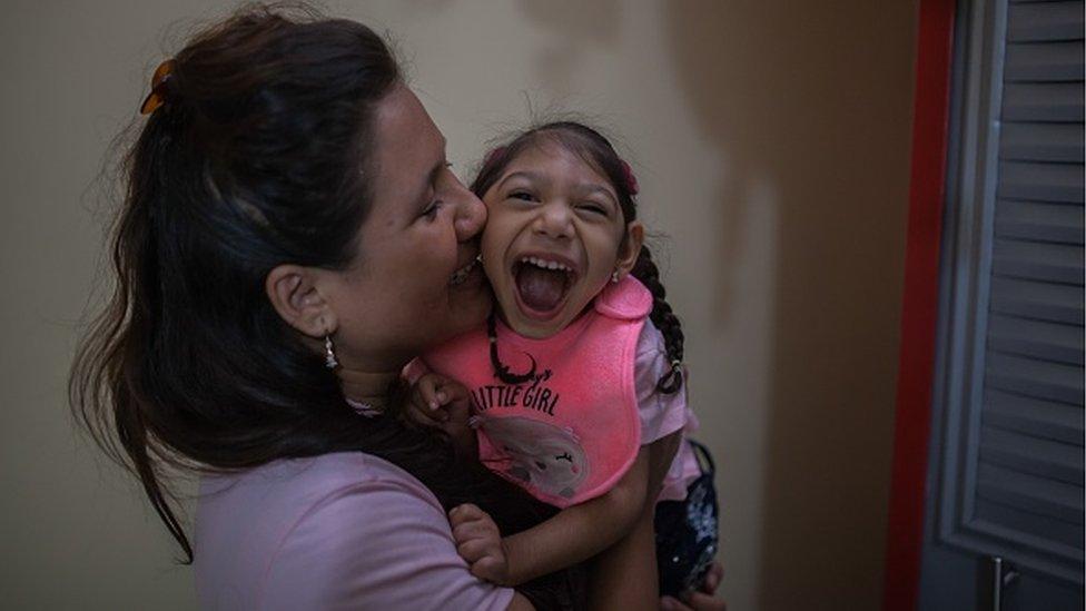 Una niña colombiana con microcefalia por el virus zika.
