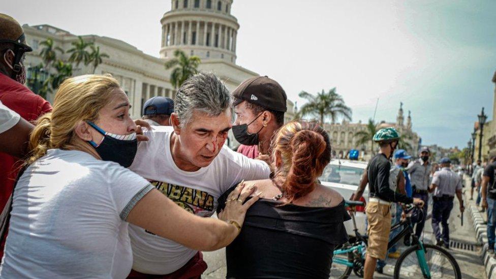 Hombre tras sufrir una lesión en el rostro durante las protestas en Cuba.