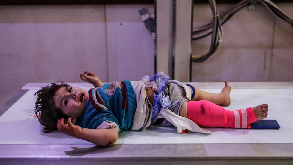 An injured child receives first aid in hospital after a bombing in Douma, eastern Ghouta, Syria, 08 February 2018