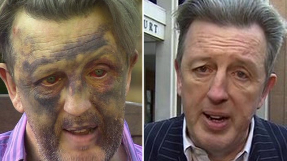 Paul Kohler soon after the attack (left), and outside court (right)
