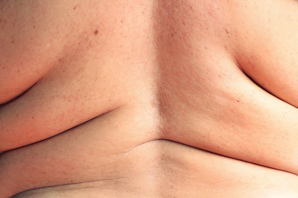 Espalda de alguien con sobrepeso.