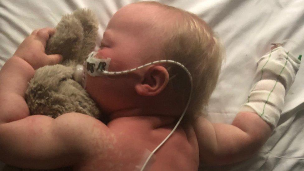 Measles: 'My baby's eyes were swollen shut'