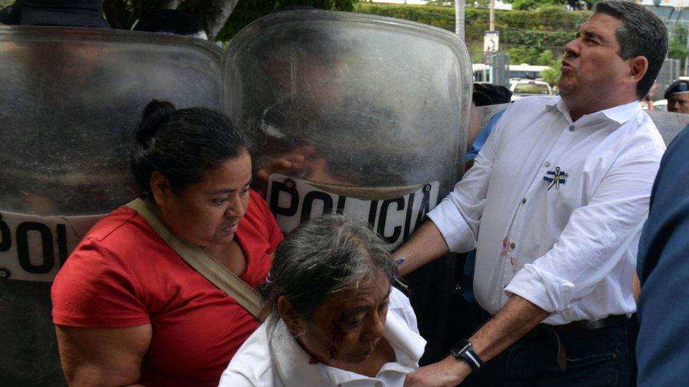 Policía reprime a manifestantes en Nicaragua
