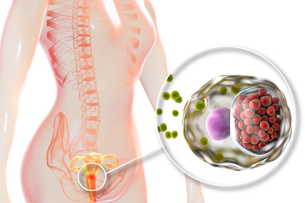 Infección de clamidia en una mujer