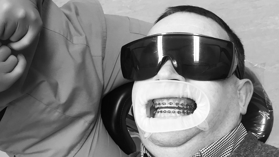 Neil having his braces removed