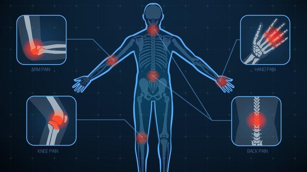 Gráfico que muestra las articulaciones del cuerpo más afectadas por la artritis