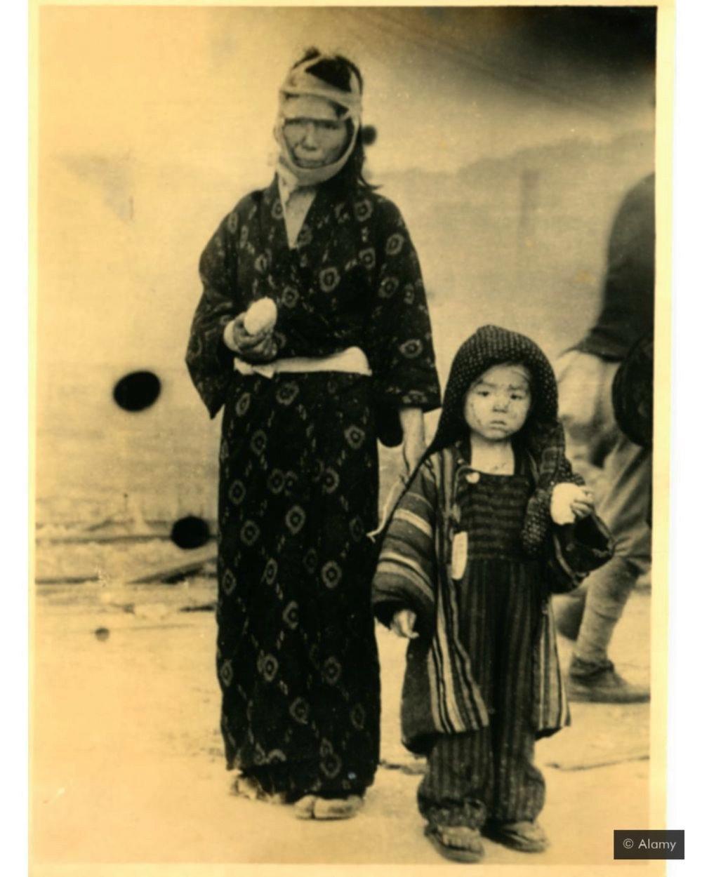 preživeli u nuklearnom napadu na japan