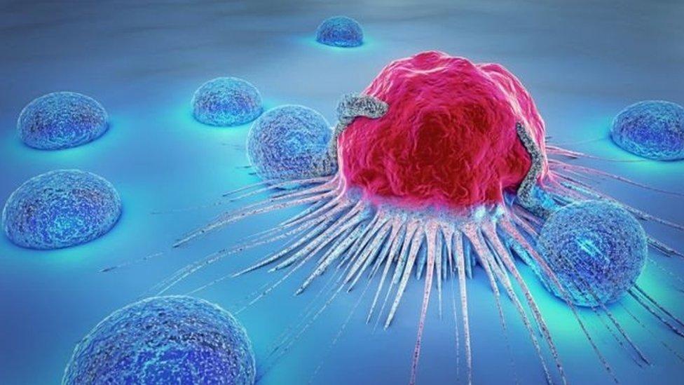 Штучний інтелект може допомогти прогнозувати рак - вчені