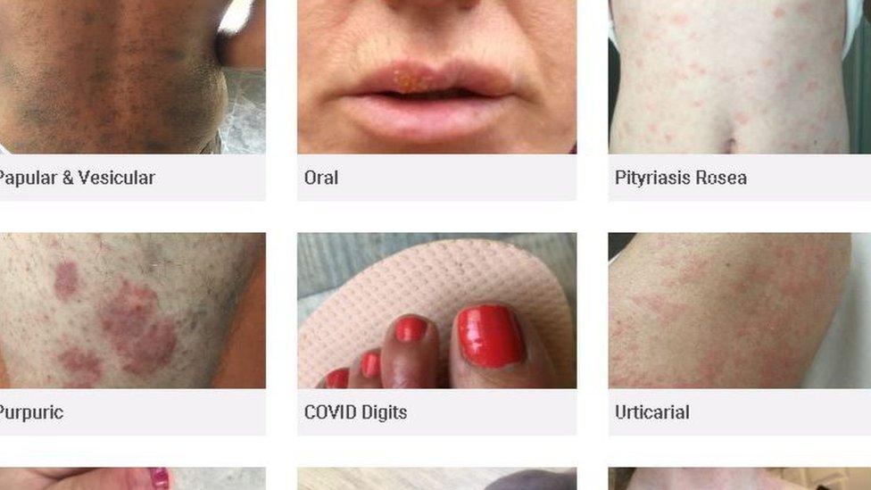 Banco de imágenes de covid. Fotos de archivo de reproducción del sitio web de Covid Skin Signs