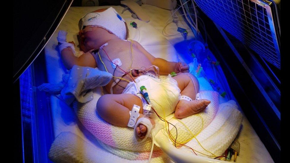 Un babé recién nacido recibiendo una transfusión.