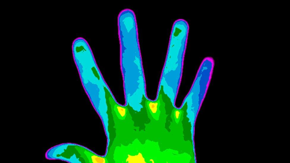mano de una persona con esclerosis múltiple