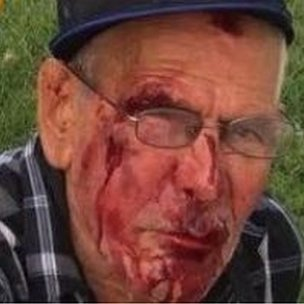 Photo of Mr Rodriguez's bloody face