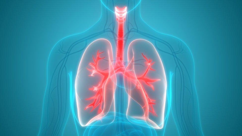У легенях людей із зайвою вагою знайшли жир. Він може спричиняти астму