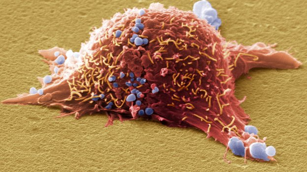 Melanoma cancer cell