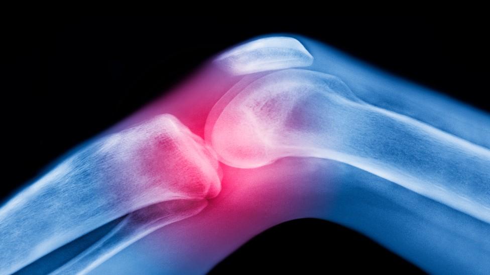 Ilustração mostra ossos do joelho