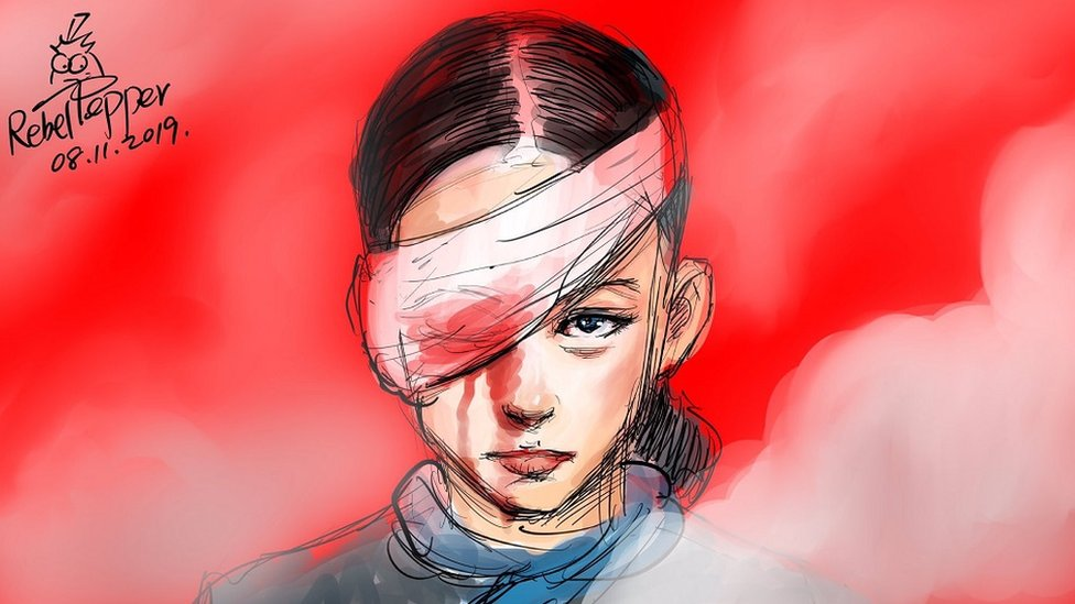 Poster by artist Rebel Pepper of a young woman with an eye covered by a bloodied bandage.