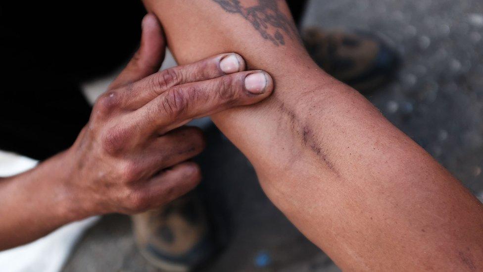 Brazo de una persona con marcas de los pinchazos