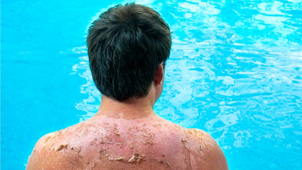 Sunburn warning as 220 treated in Northern Ireland