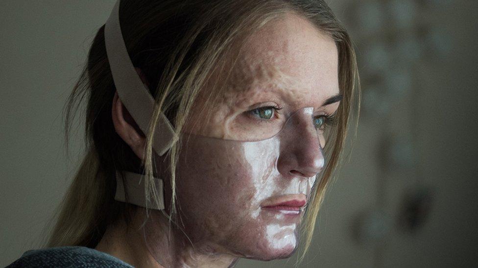 Vicky Knight posa en la película con una máscara facial para la cirugía de su personaje.