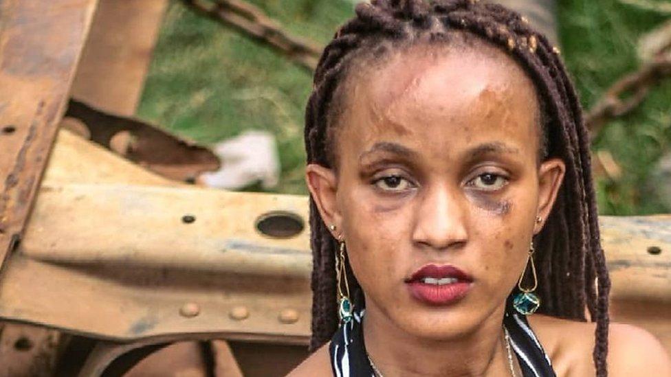 Kenyan model: 'I won't wear make-up to hide my scars'
