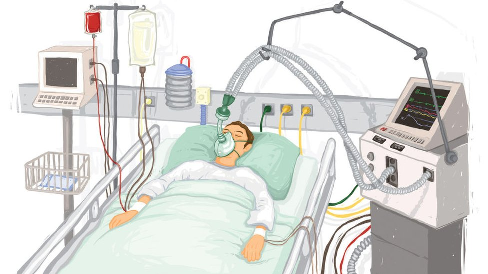 Un paciente en una unidad de cuidados intensiva.