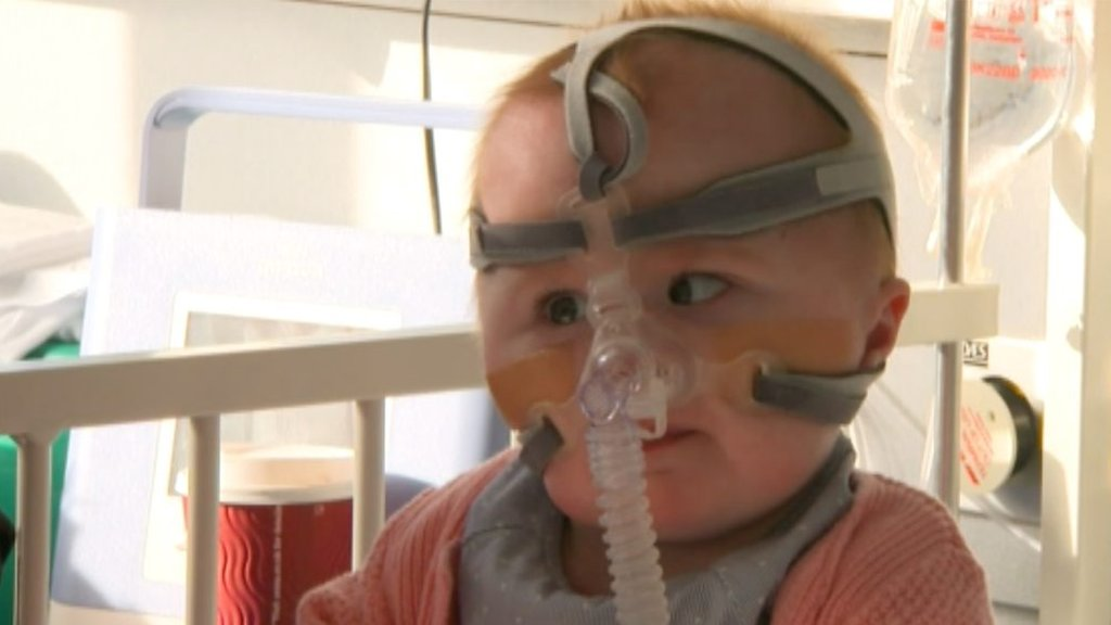Vanellope Hope Wilkins: Home for girl born with heart outside body