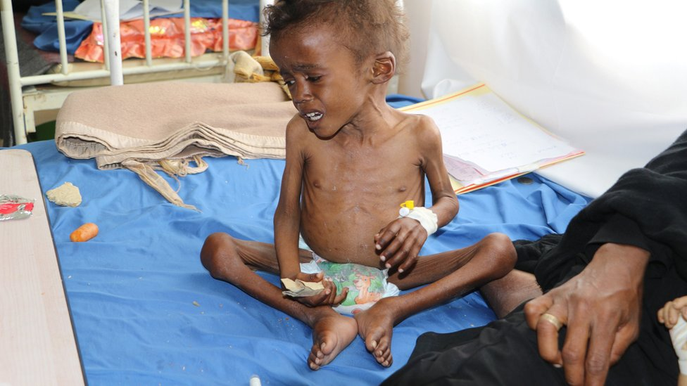 Jamal Mujalli al-Mashriqi, 4, who suffers from malnutrition, sits on a bed at a hospital in the northwestern city of Saada